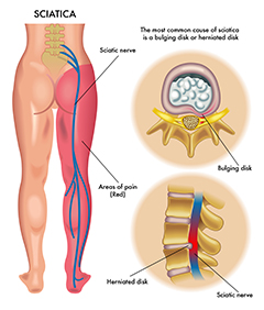 Radiculopathy1